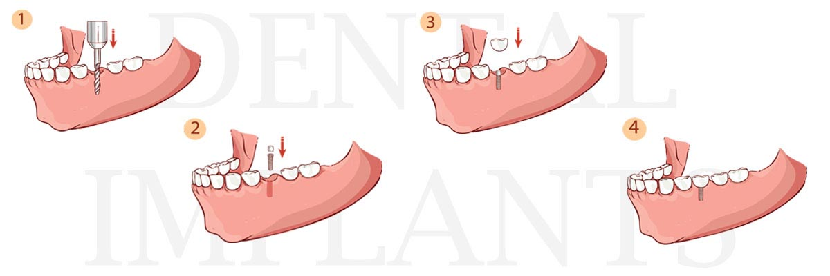 Lacey The Difference Between Dental Implants and Mini Dental Implants