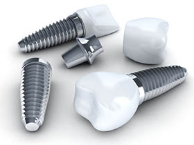The Difference Between Dental Implants and Mini Dental Implants